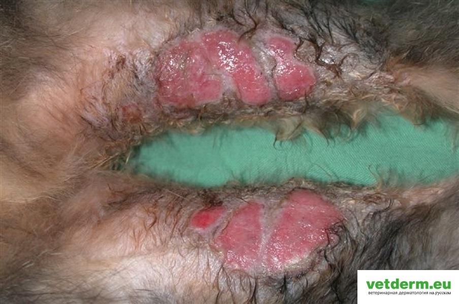 Аллергический дерматит у детей симптомы и лечение